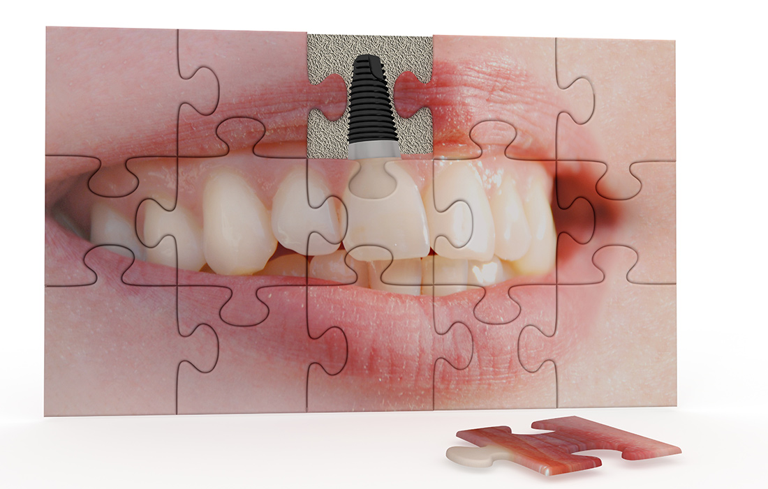 Complications Caused by Tooth Loss