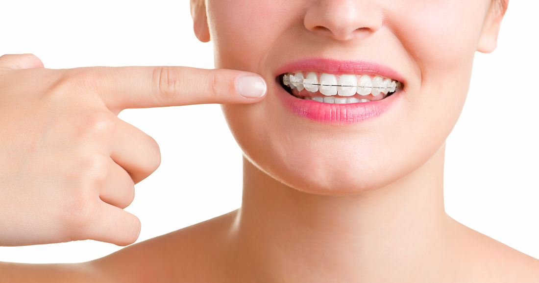 Orthodontic Options for Adults