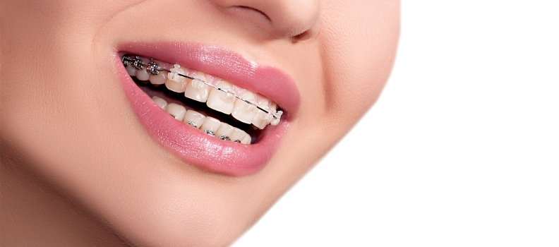 How Much Do Braces Cost in Canada?
